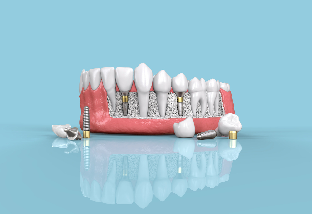 dental implants colchester